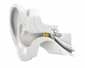 Lyric 3 Unsichtbares Hörgerät im Gehörgang